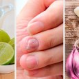 Home Remedies for Fungal Nail Infection Treatment