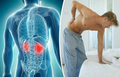 Causes of Kidney Pain