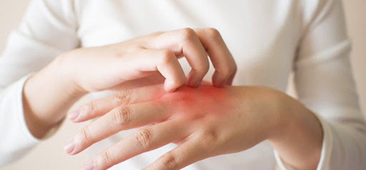 What is Pruritus