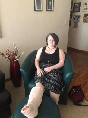 Leah at our house with her ankle elevated, pre-surgery