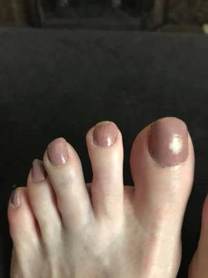 hurt middle toe