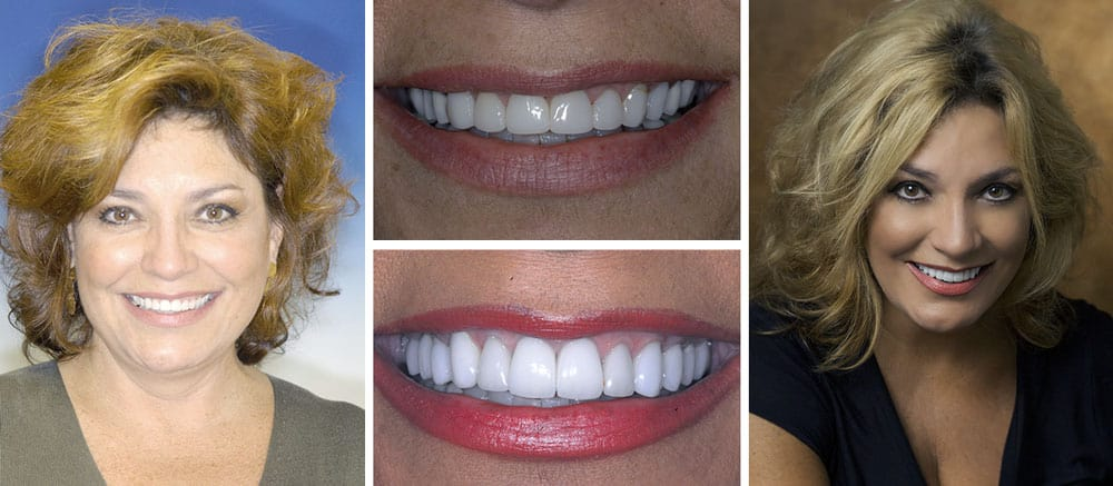 Gessner - before and after smile - Beth Snyder, DMD