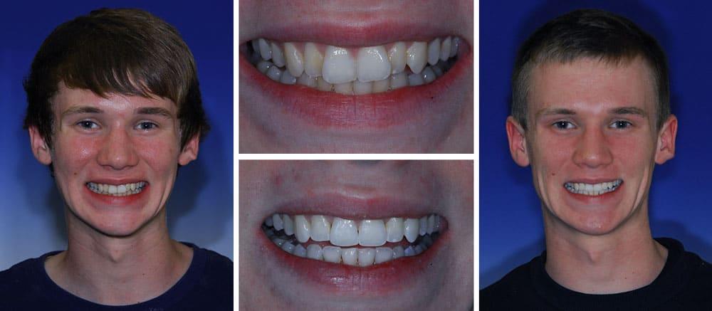 Greg - before and after smile - Beth Snyder, DMD