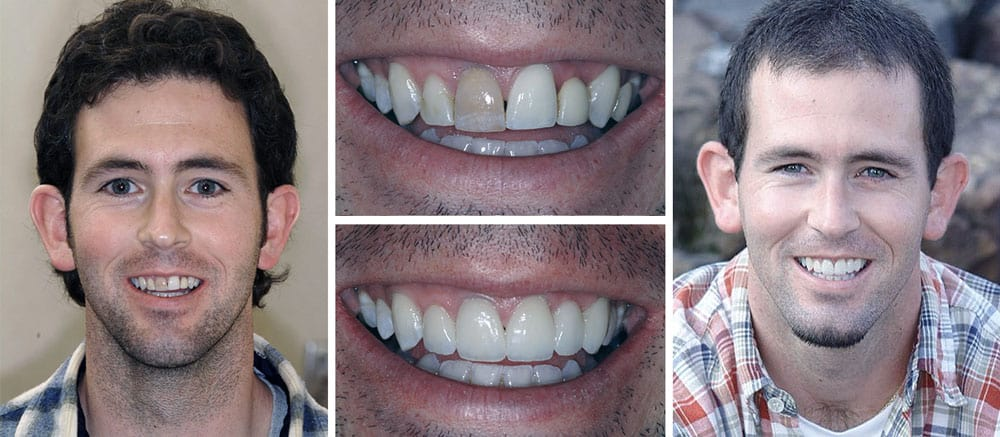 Sean - before and after smile - Beth Snyder, DMD