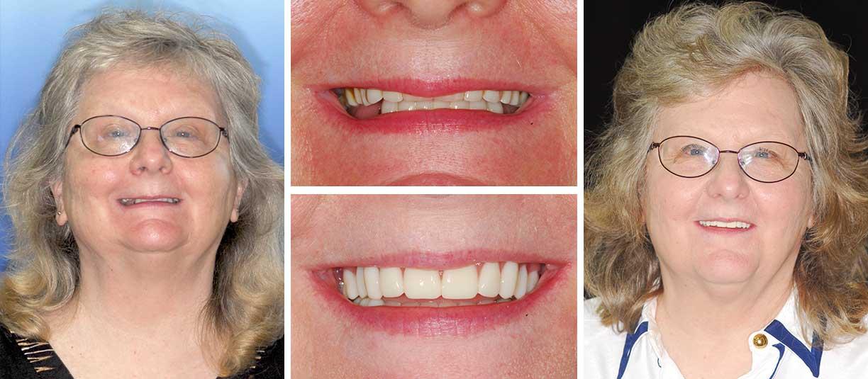 Karen before and after image - Beth Snyder, DMD