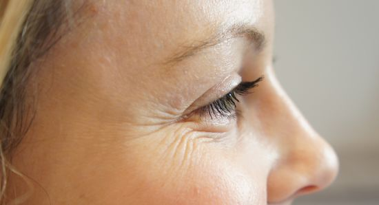 Image result for wrinkles