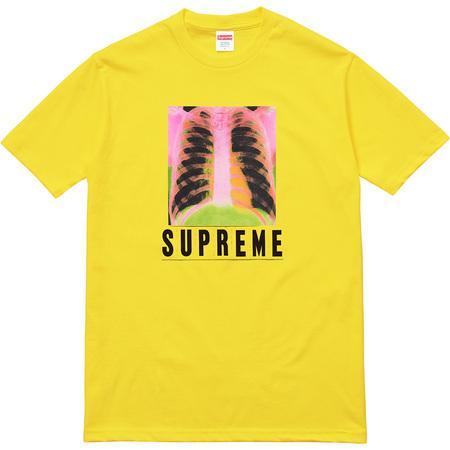 X-Ray Tee (Yellow)