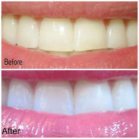 smile-brilliant-before-and-after-pics-and-review