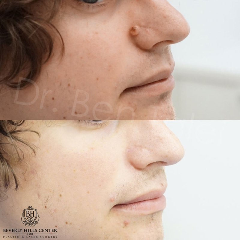 mole on lower lip | Amtmakeup co