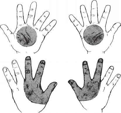 Image result for gunshot residue on hands