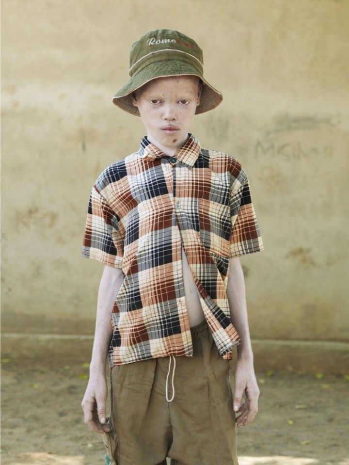 photo albino