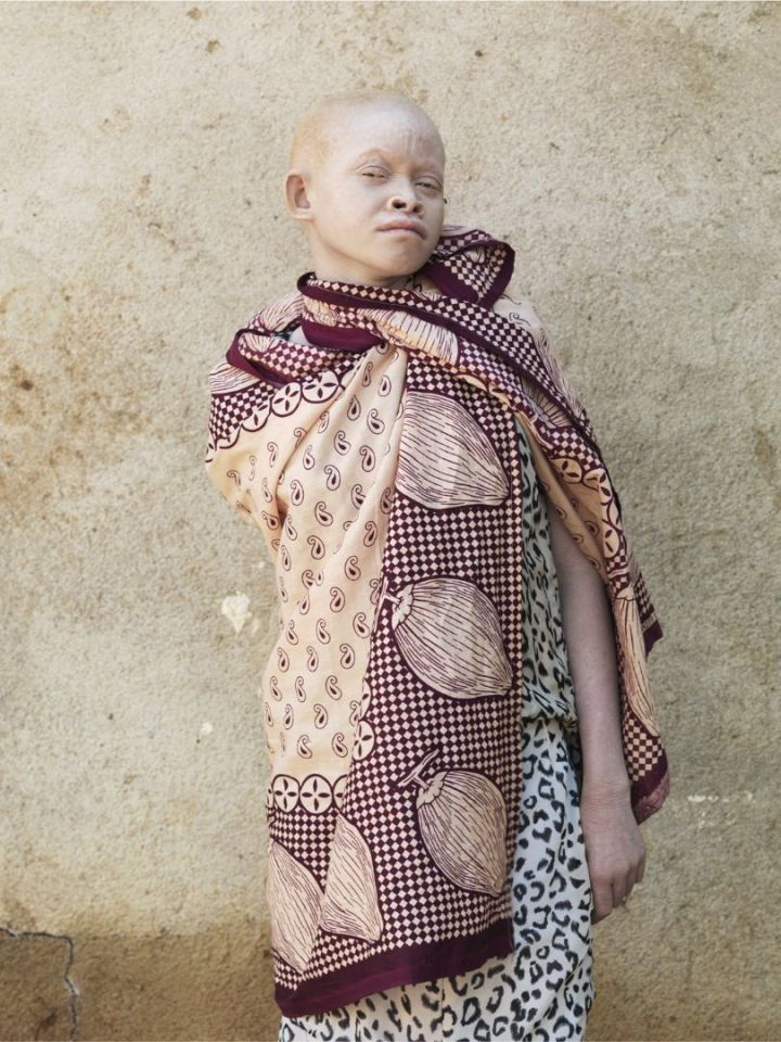 enfants albinos