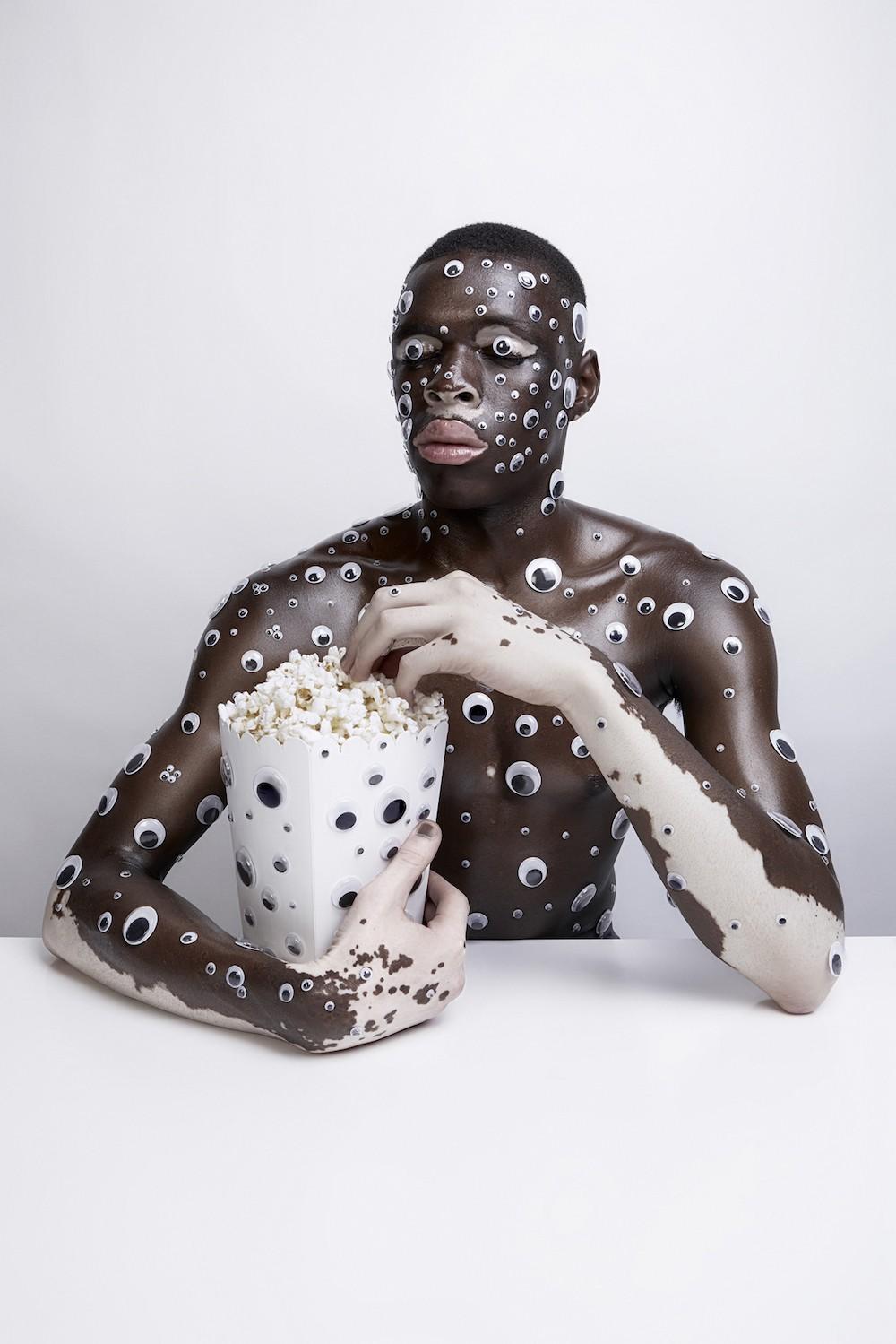 le vitiligo photographie