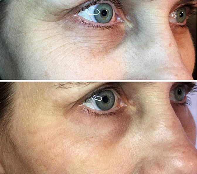 New! Fibroblast Skin Tightening