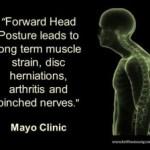 forward-head-posture img