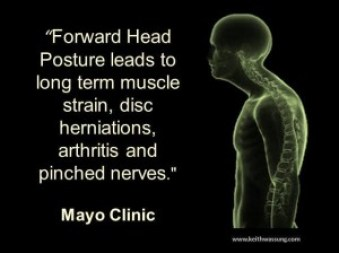 forward-head-posture img