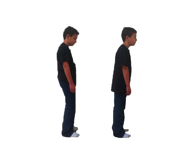 Want changes like these? Your body will pop upright too! All bodies do with posture correction.