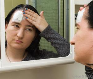 head-injury-