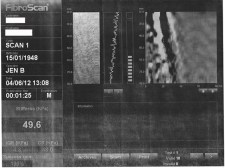 Cirrhosis is monitored by fibroscan