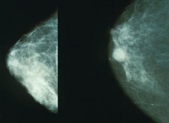 mammografi, kanker payudara