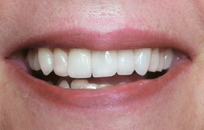 Teeth whitening after photo
