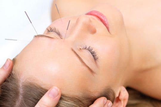 acupuntura cosmetica en valencia