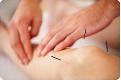 acupuntura deporte
