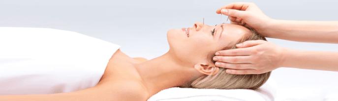 acupuntura para ansiedad