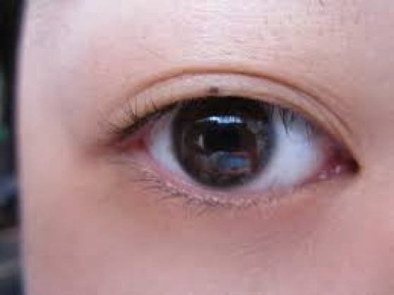 Meaning of mole - Moles on the Eye Lids