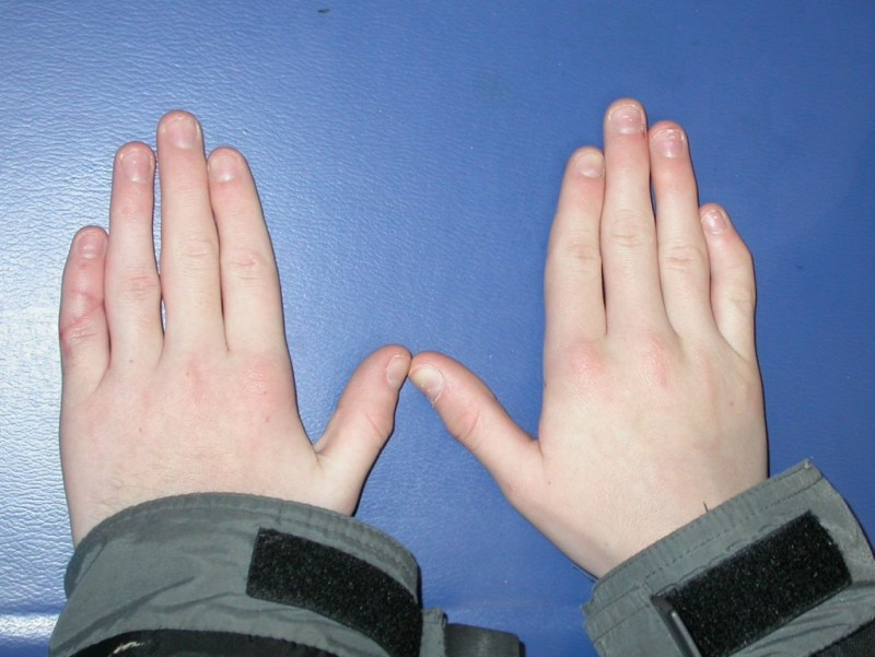 Curved Fingers Meaning