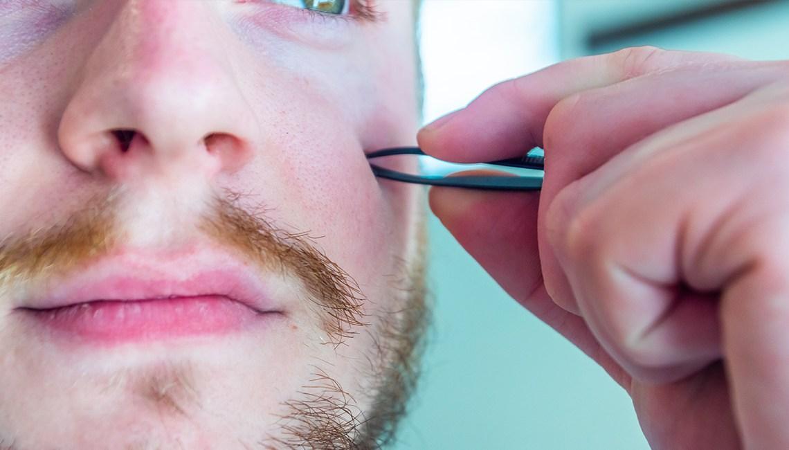 Comment enlever poil incarné