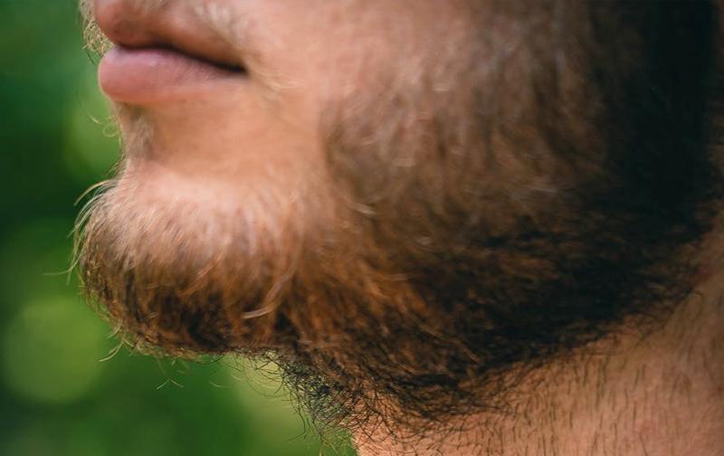 poils roux barbe que faire