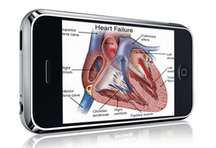 mHealth on iPhone
