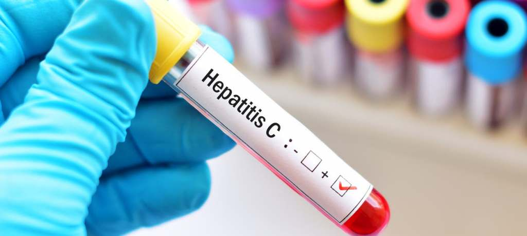 تشخيص التهاب الكبد الوبائي C.. أول اختبار مغربي الصنع سيحمي الساكنة