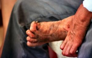 1274-leprosy