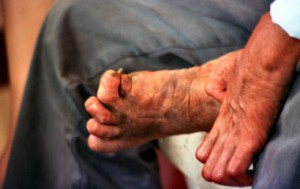 1274 cuzzam 300x189 - What Is Leprosy?