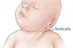 14760 116199 300x200 - Tortikolis symptoms, diagnosis and treatment