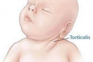 14760 116199 300x200 - Tortikolis symptoms, diagnosis and treatment