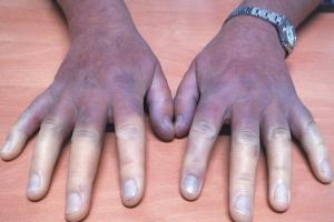 What is Peripheral Artery Disease