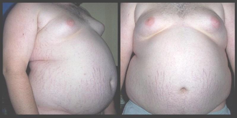 fat gut, not mine