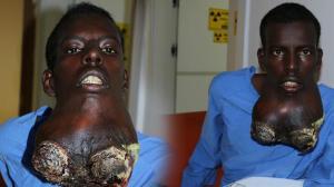 Son dakika! Somalili genç Türkiye'de tümöründen kurtuldu! Son hali inanılmaz