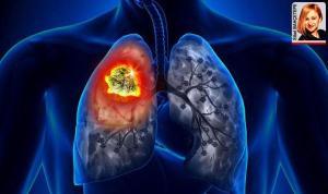 Akciğer kanseri dünyada en sık ortaya çıkan ikinci kanser
