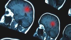 İnme ya da felç sonrası beyin nasıl iyileşir?