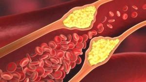 Kötü kolesterolü düşüren 8 yiyecek