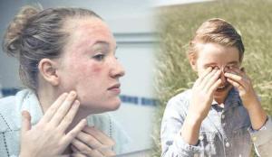 Bu hastalıklara sahipseniz güneş alerjisi riskiniz daha fazla!
