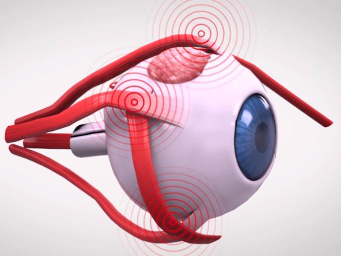 eye-strain-binarymove
