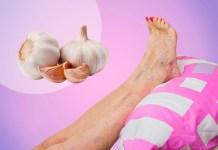 Les varices aux jambes - Traitement naturel à base de l'ail