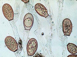 chytridiomycota fungus