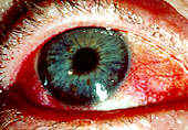 Figure 1.  This red, dry eye is one common symptom of Sjogrens syndrome.    Permission for use granted by Rolf Manthorpe, Head of the Sjogrens Syndrome Research Centre