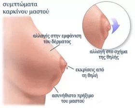 symptomata-karkinou-mastou-